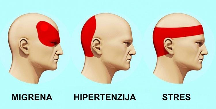Tipovi glavobolje