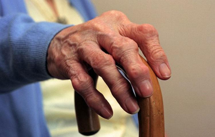 Ruka starca sa artrozom