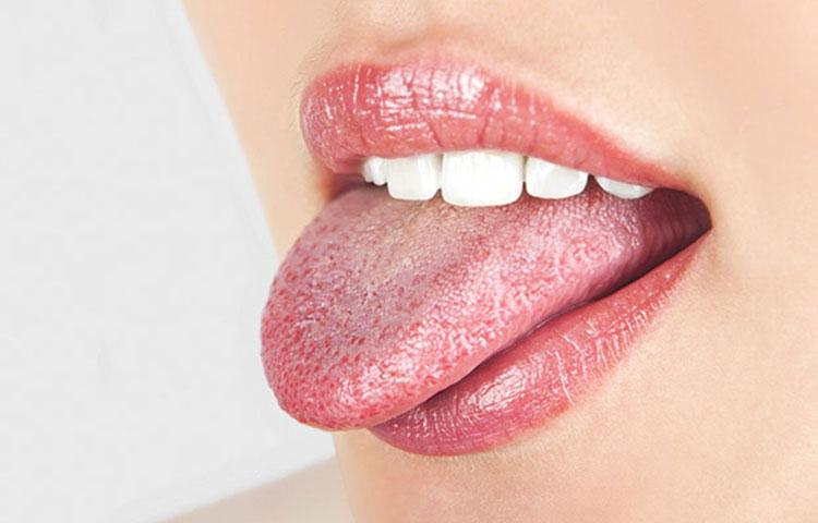 Isplazen jezik