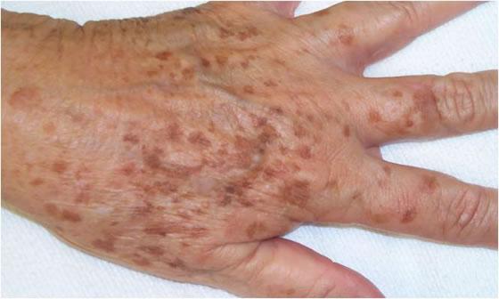 Hiperpigmentacija ruke